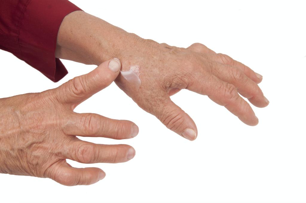 Huesos Saludables